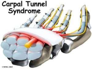 tunnel carpale mano