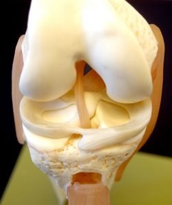 ginocchio plastico ossa menisco
