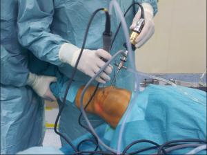 operazione menisco sala operatoria